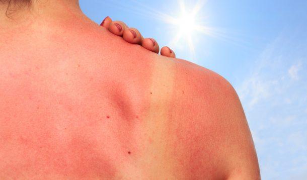Les coups de soleil facteur de risque de mélanome